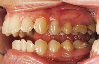 Could you identify oral cancer? | Pharmacy MagazineEarly Oral Cancer Pictures