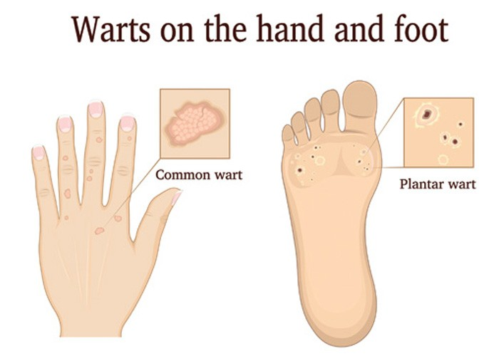 hpv warts on feet and hands